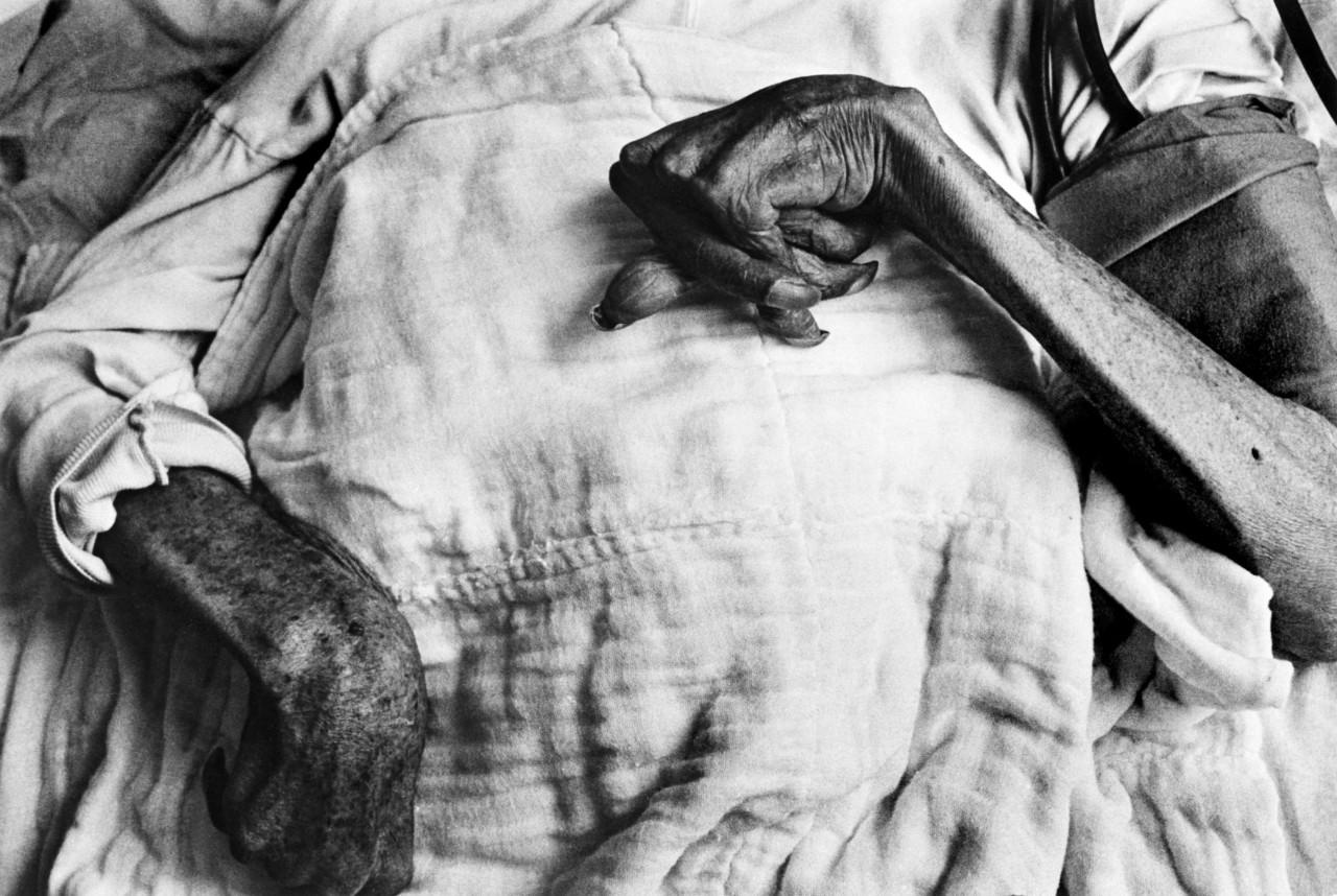 Ивазо Фунаба, жертва болезни Минамата, 1971 г. © W. Eugene Smith   Magnum Photos