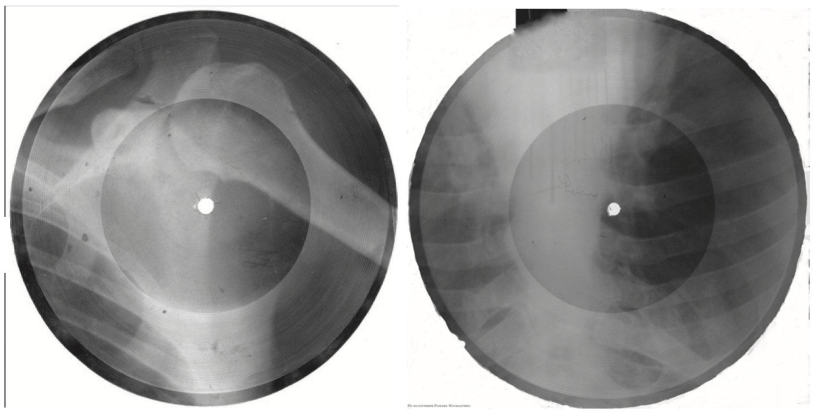 «Рок на костях». Пластинки на рентгеновских снимках. Фото автора