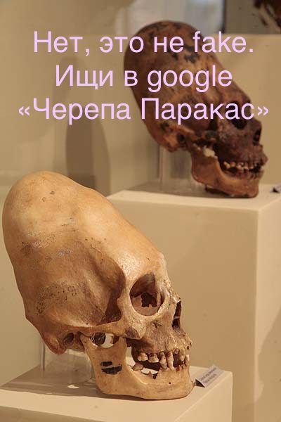 «...я сдавливаю детские головы тугими повязками, чтобы впоследствии их черепа приобрели необычную форму.»