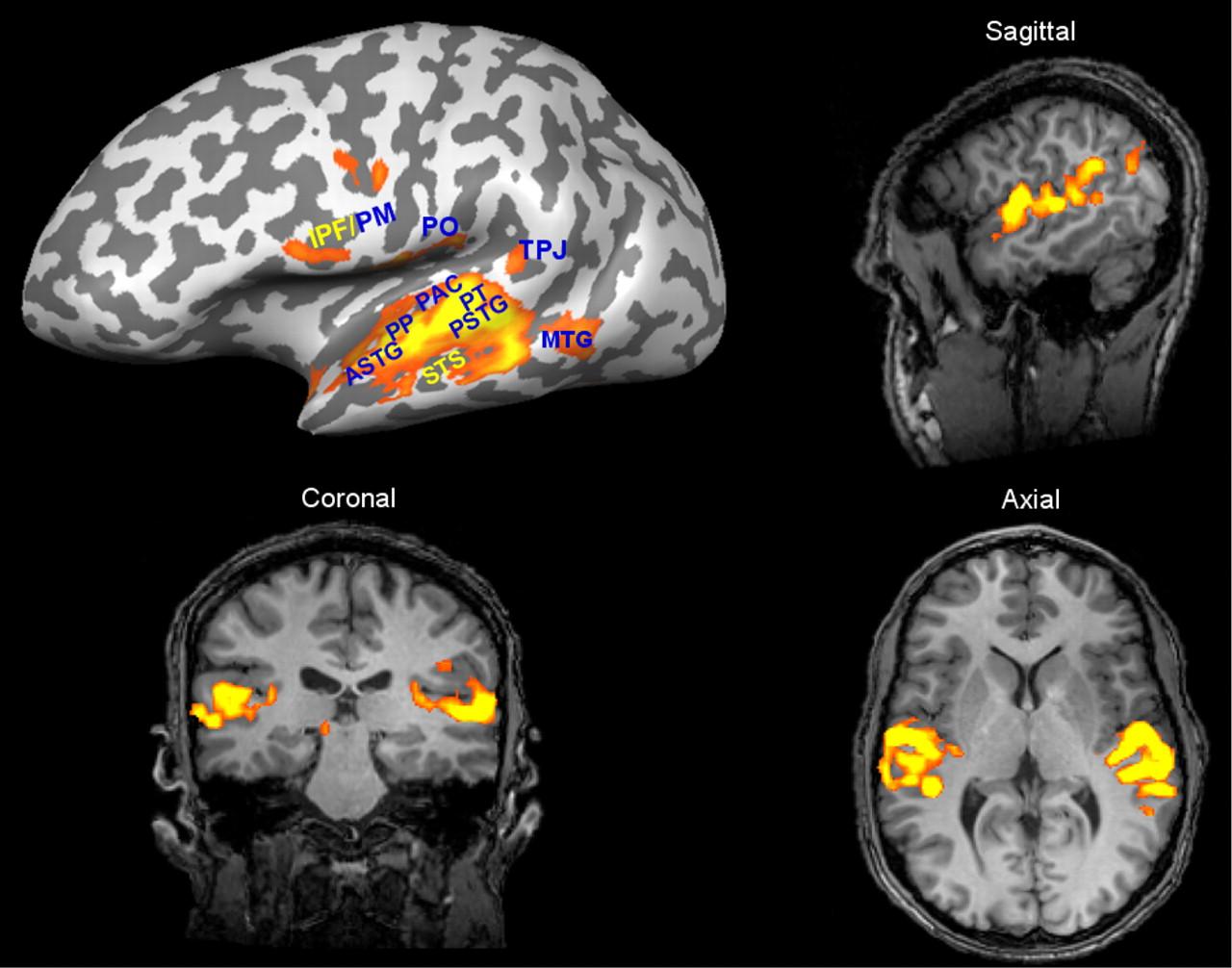 Илл.4. Изображение активации слуховой коры, полученное методом функциональной МРТ.